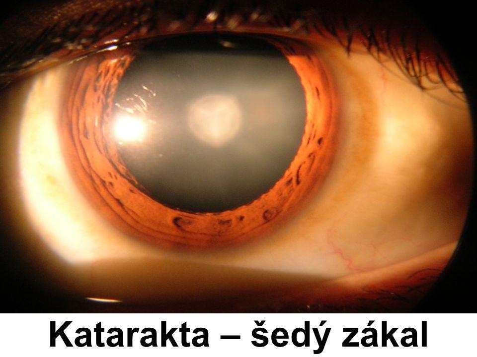Katarakta – šedý zákal