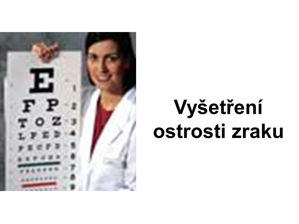 Vyšetření ostrosti zraku