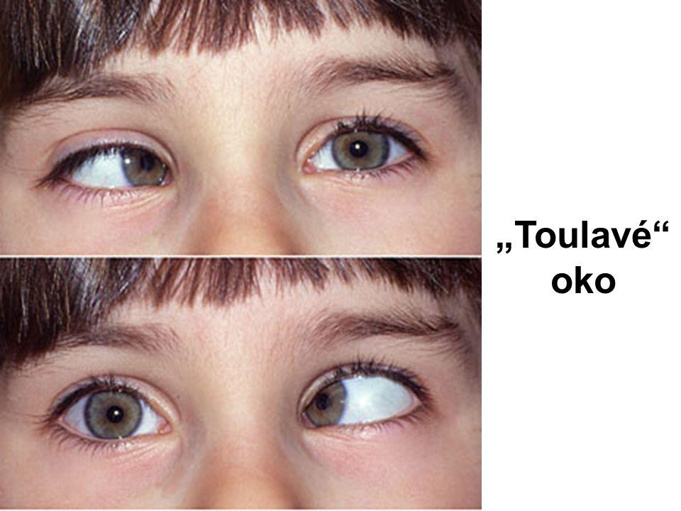 """Toulavé oko"