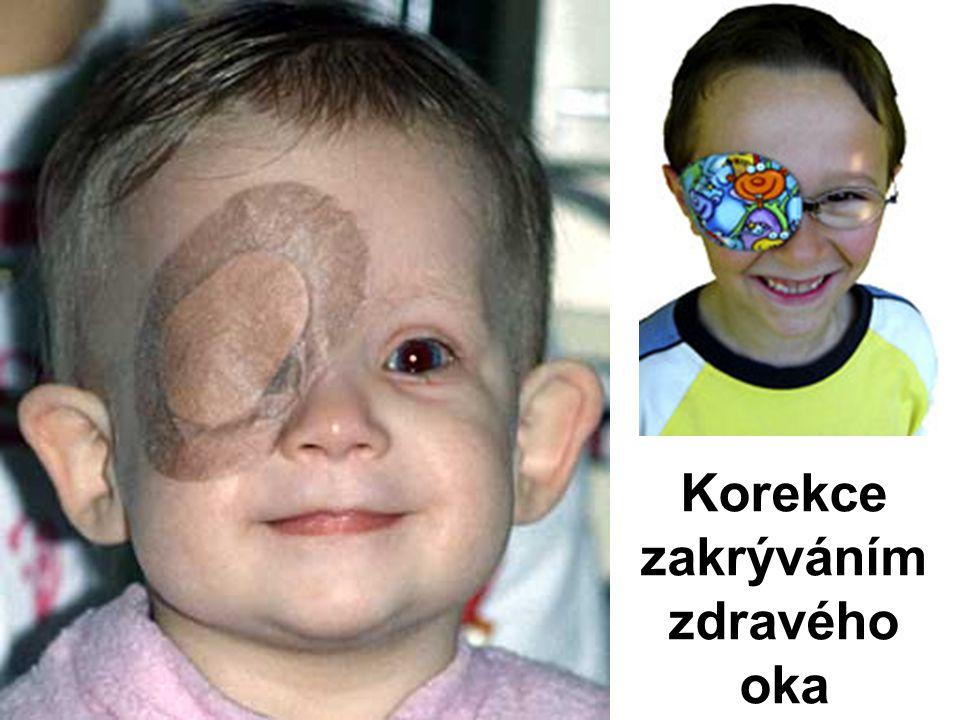 Korekce zakrýváním zdravého oka