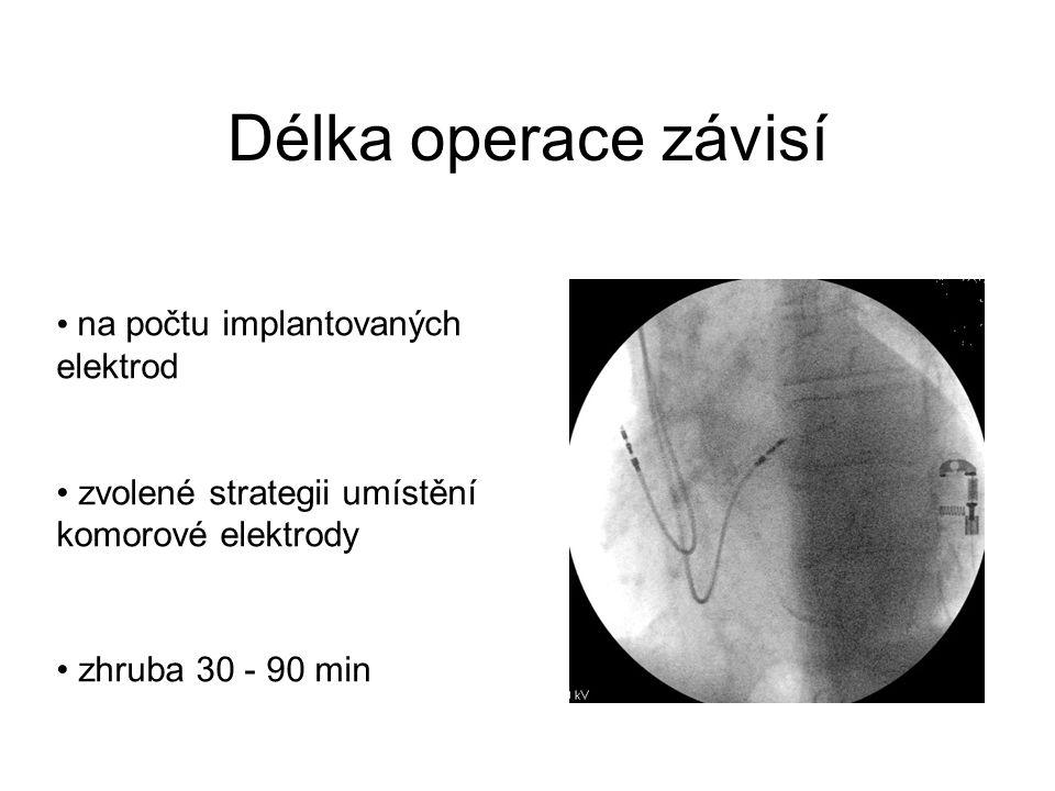Délka operace závisí na počtu implantovaných elektrod