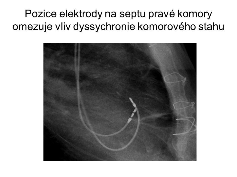 Pozice elektrody na septu pravé komory omezuje vliv dyssychronie komorového stahu