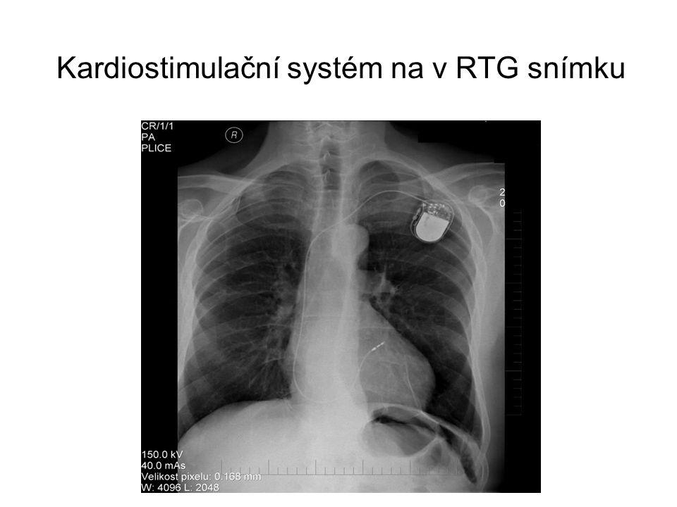 Kardiostimulační systém na v RTG snímku