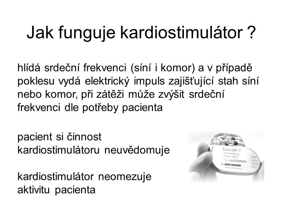 Jak funguje kardiostimulátor