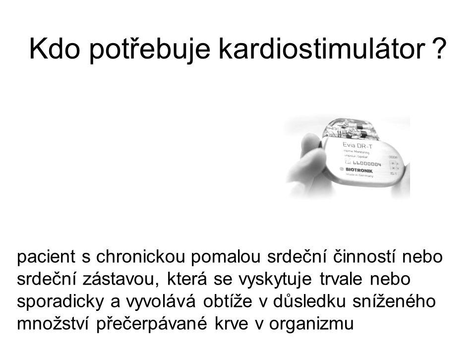 Kdo potřebuje kardiostimulátor