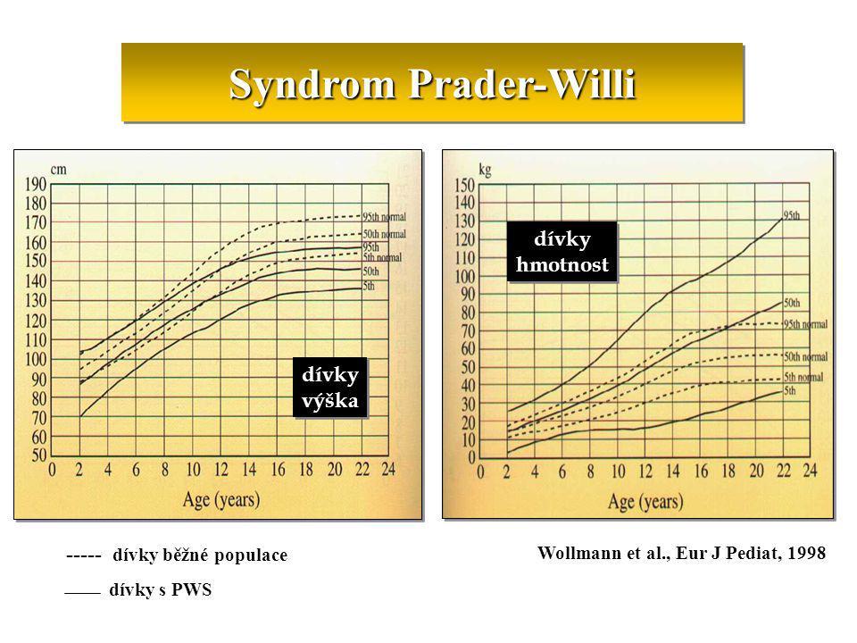 Syndrom Prader-Willi dívky hmotnost dívky výška