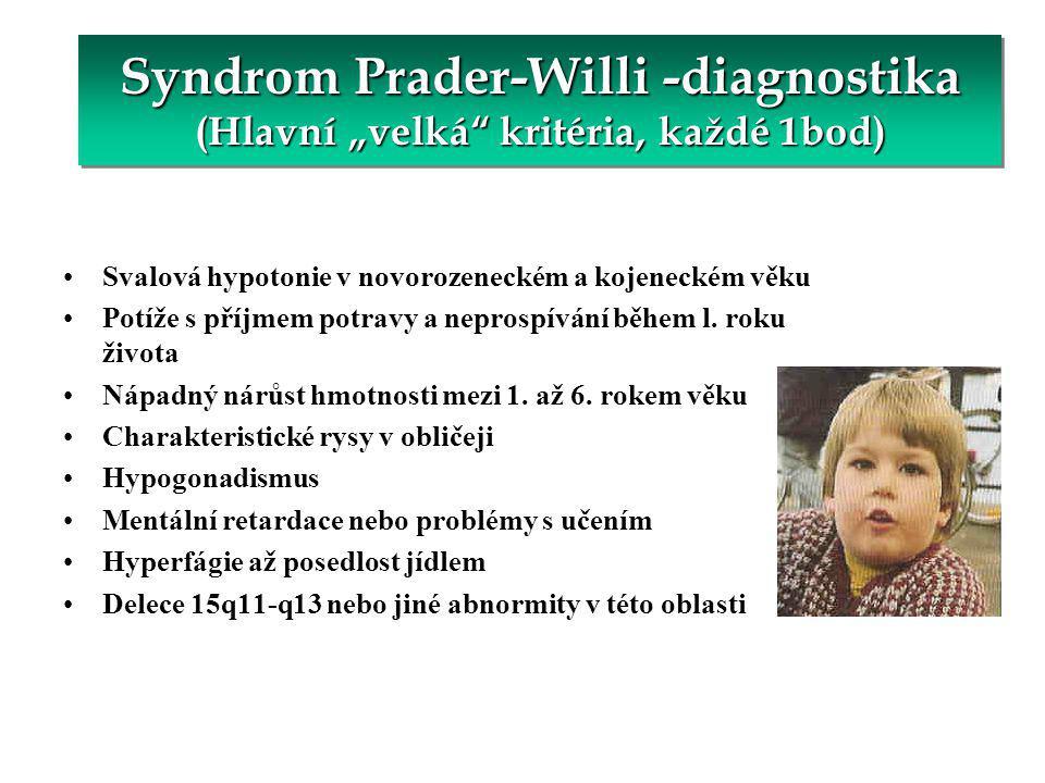 """Syndrom Prader-Willi -diagnostika (Hlavní """"velká kritéria, každé 1bod)"""