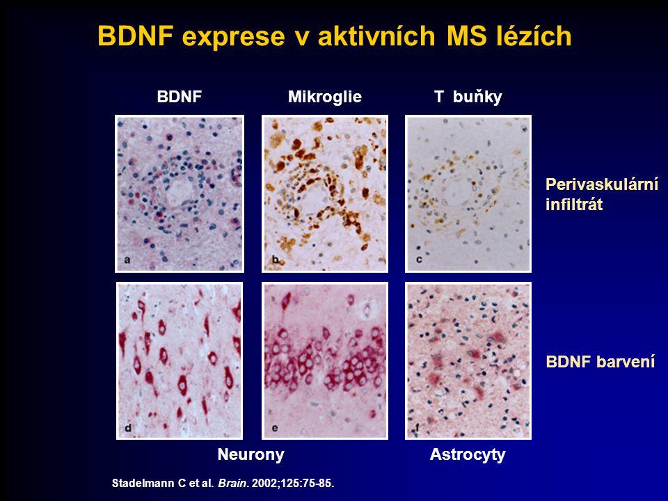 BDNF exprese v aktivních MS lézích