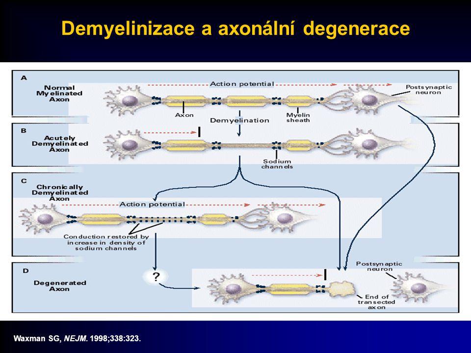 Demyelinizace a axonální degenerace