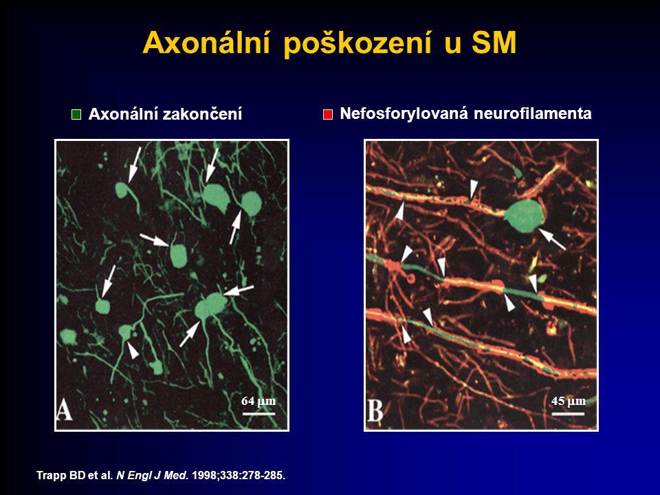 Axonální poškození u SM