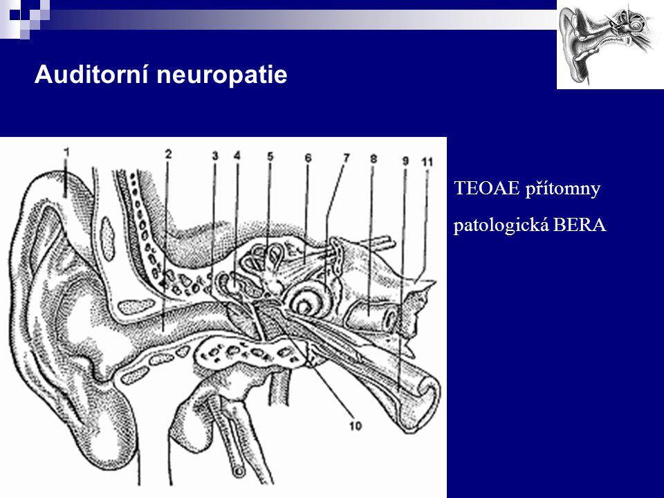 Auditorní neuropatie TEOAE přítomny patologická BERA