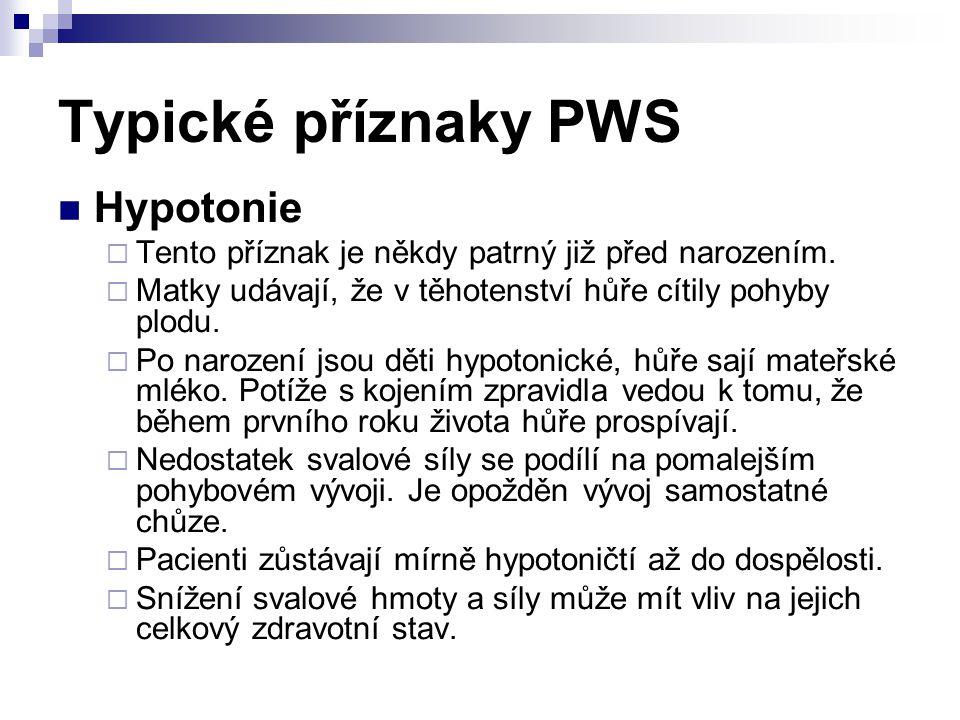 Typické příznaky PWS Hypotonie