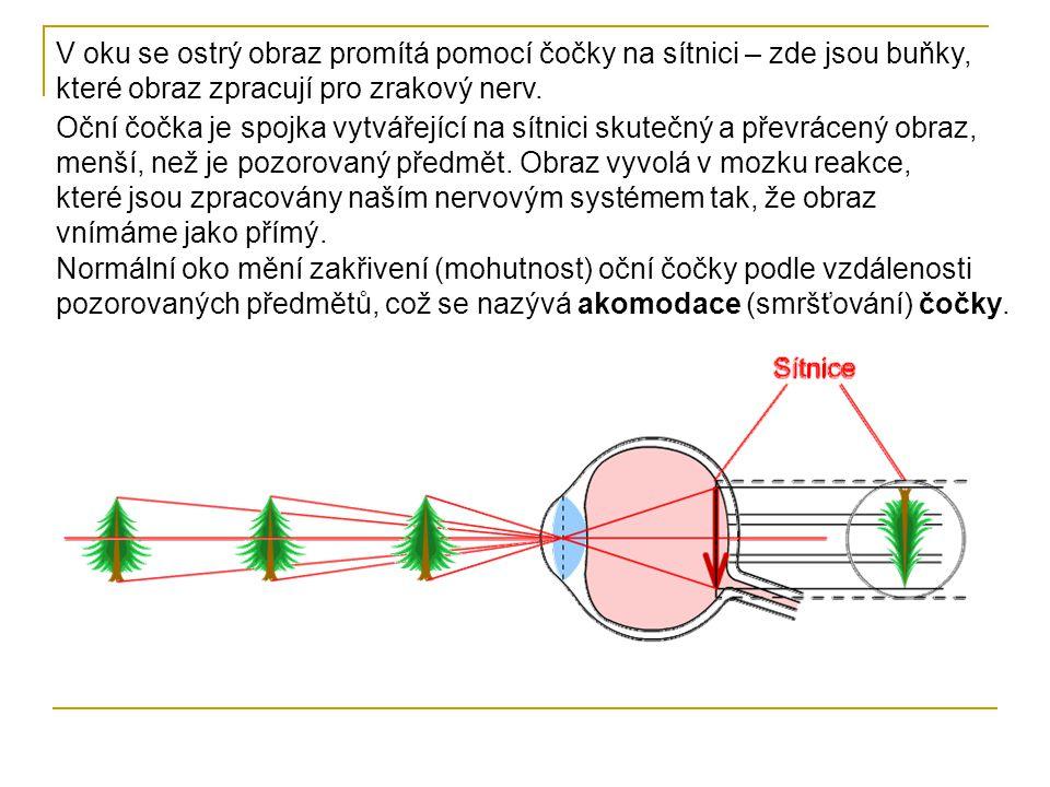 V oku se ostrý obraz promítá pomocí čočky na sítnici – zde jsou buňky, které obraz zpracují pro zrakový nerv.