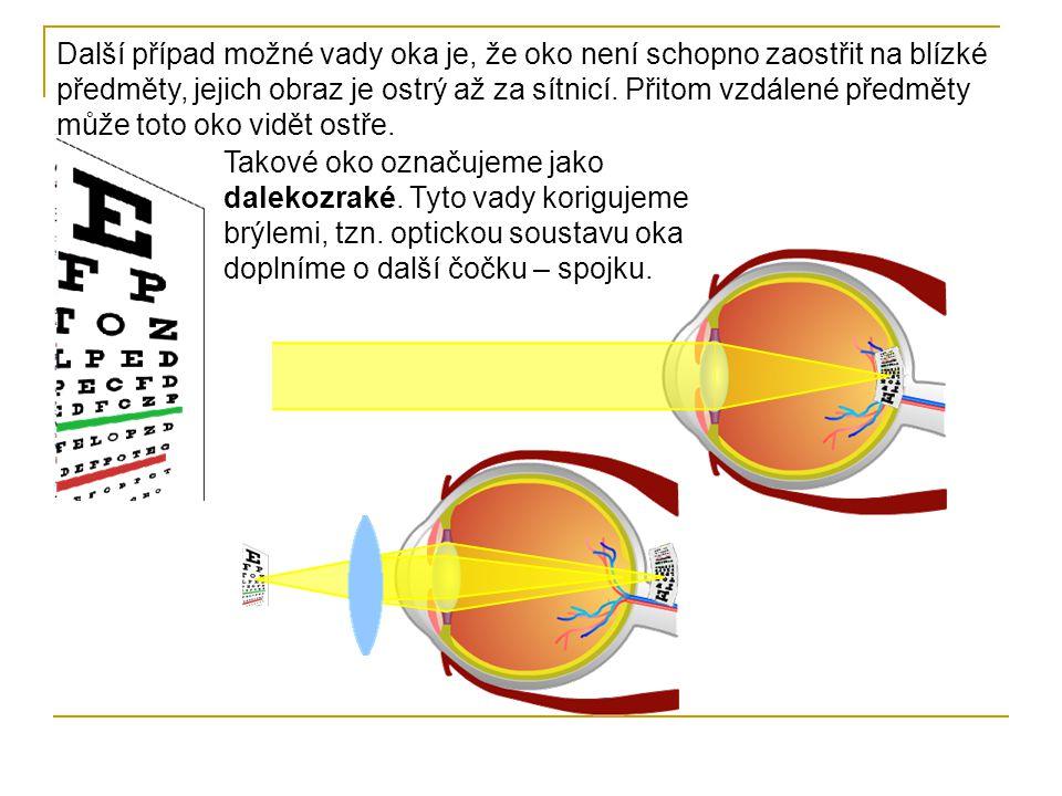 Další případ možné vady oka je, že oko není schopno zaostřit na blízké předměty, jejich obraz je ostrý až za sítnicí. Přitom vzdálené předměty může toto oko vidět ostře.