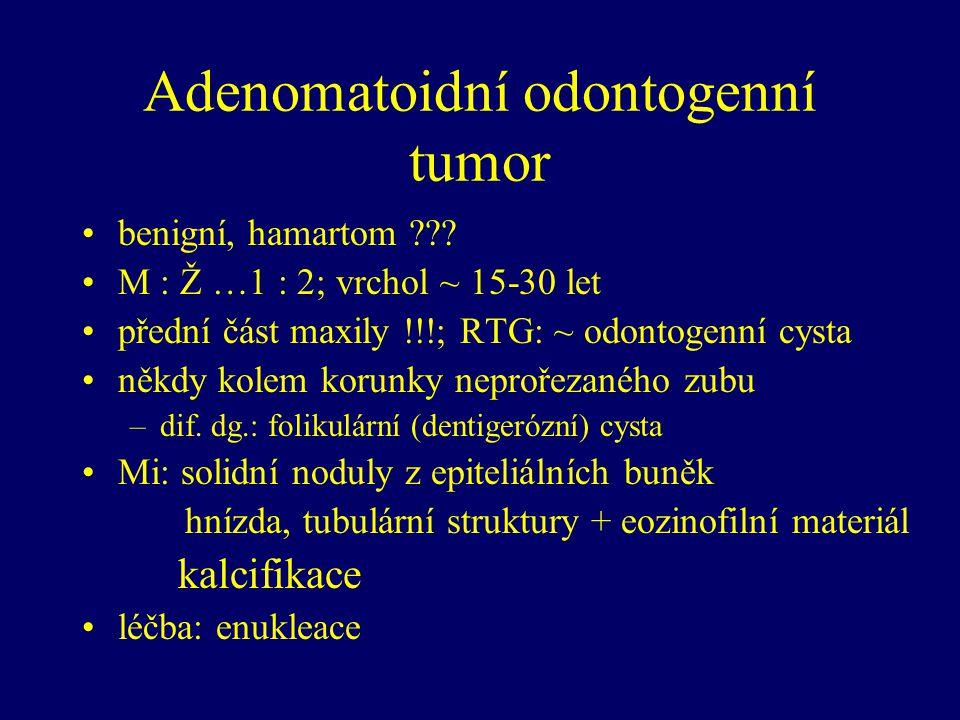 Adenomatoidní odontogenní tumor