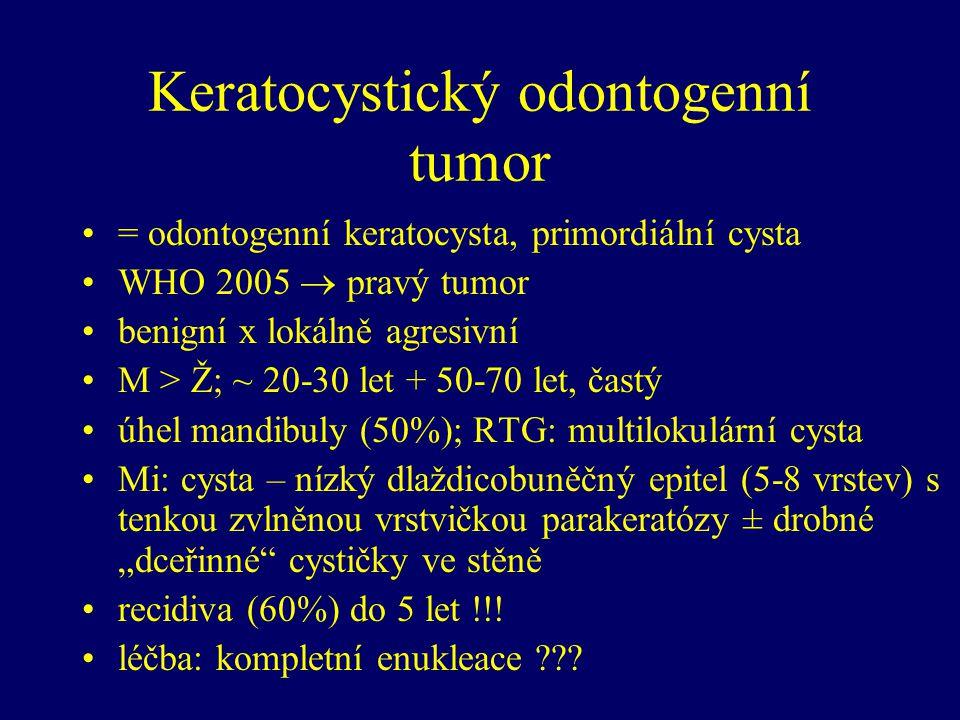 Keratocystický odontogenní tumor
