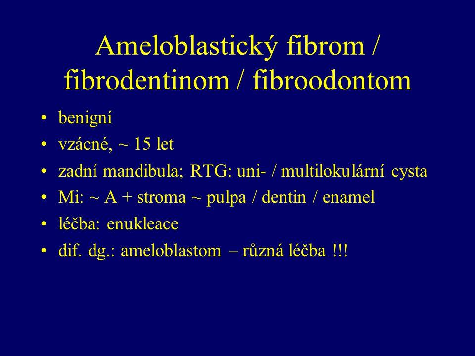 Ameloblastický fibrom / fibrodentinom / fibroodontom