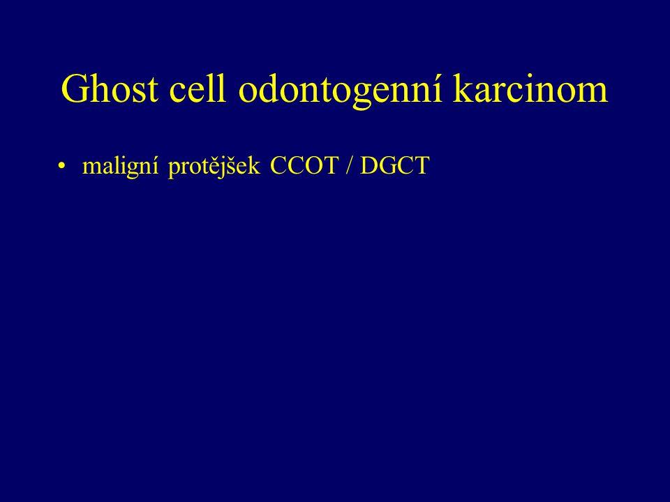 Ghost cell odontogenní karcinom