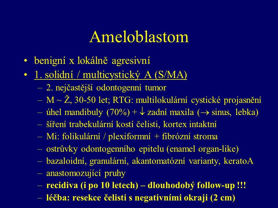 Ameloblastom benigní x lokálně agresivní