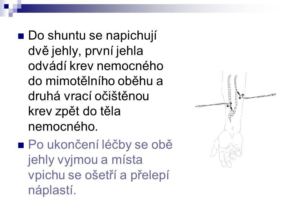 Do shuntu se napichují dvě jehly, první jehla odvádí krev nemocného do mimotělního oběhu a druhá vrací očištěnou krev zpět do těla nemocného.