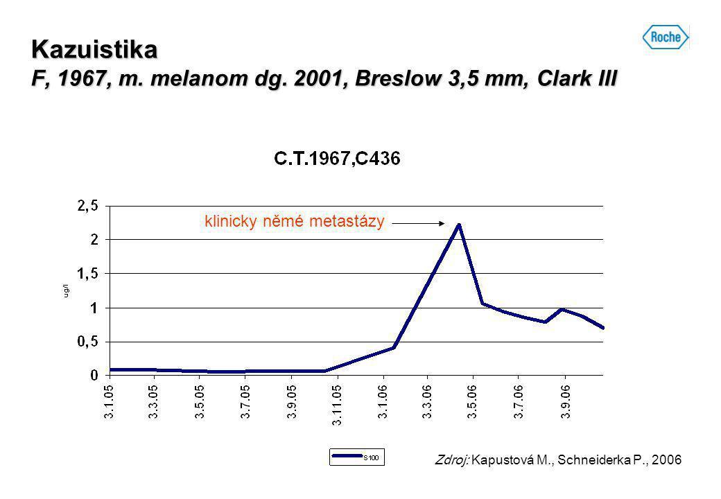 Kazuistika F, 1967, m. melanom dg. 2001, Breslow 3,5 mm, Clark III