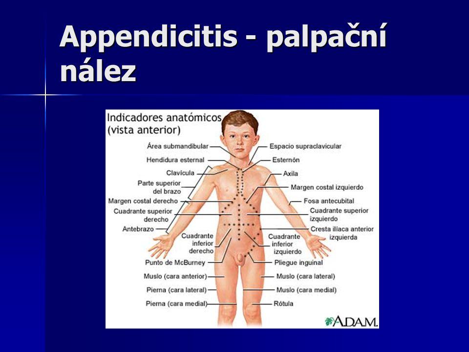 Appendicitis - palpační nález
