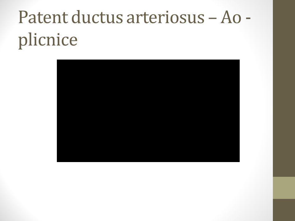Patent ductus arteriosus – Ao -plicnice