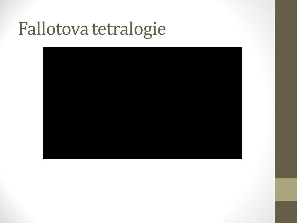 Fallotova tetralogie