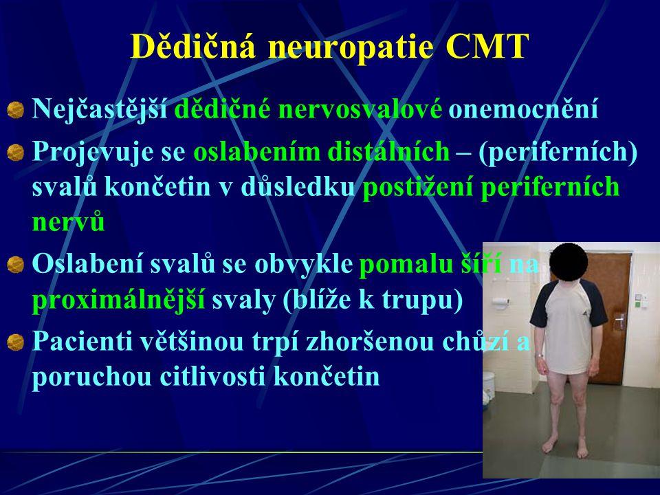 Dědičná neuropatie CMT