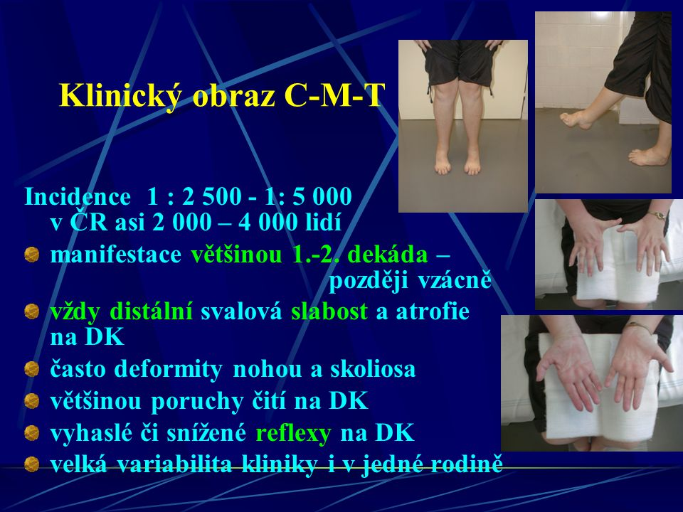 Klinický obraz C-M-T Incidence 1 : 2 500 - 1: 5 000 v ČR asi 2 000 – 4 000 lidí.