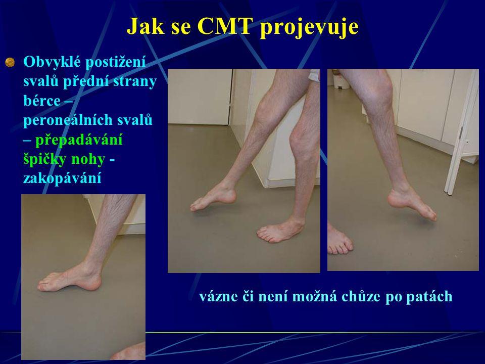 Jak se CMT projevuje Obvyklé postižení svalů přední strany bérce – peroneálních svalů – přepadávání špičky nohy - zakopávání.