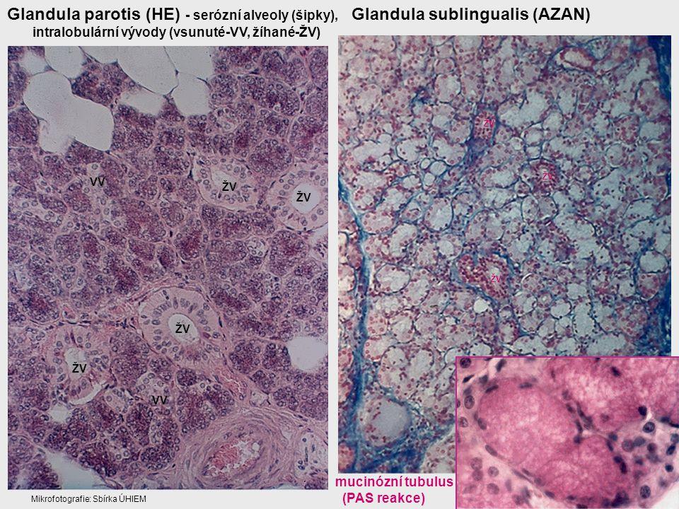 Glandula parotis (HE) - serózní alveoly (šipky),