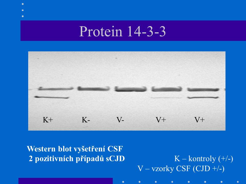 Protein 14-3-3 K+ K- V- V+ V+ Western blot vyšetření CSF