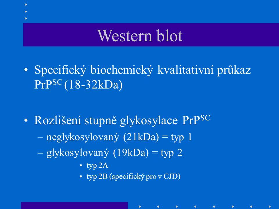 Western blot Specifický biochemický kvalitativní průkaz PrPSC (18-32kDa) Rozlišení stupně glykosylace PrPSC.