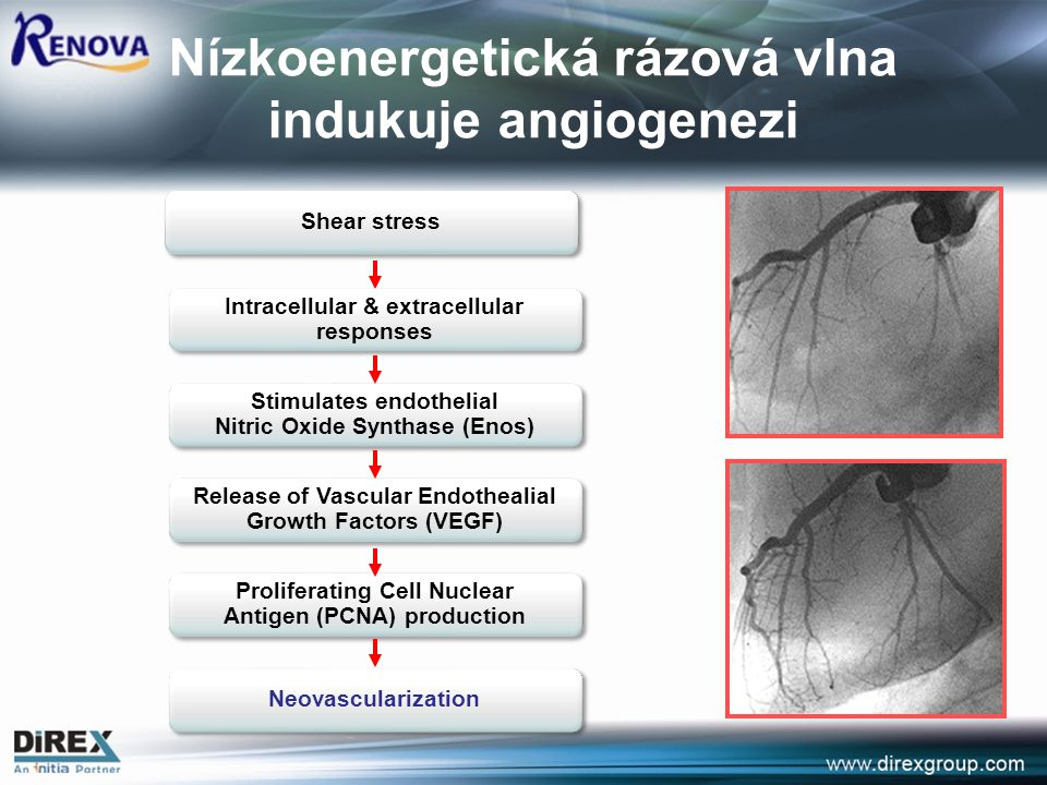 Nízkoenergetická rázová vlna indukuje angiogenezi