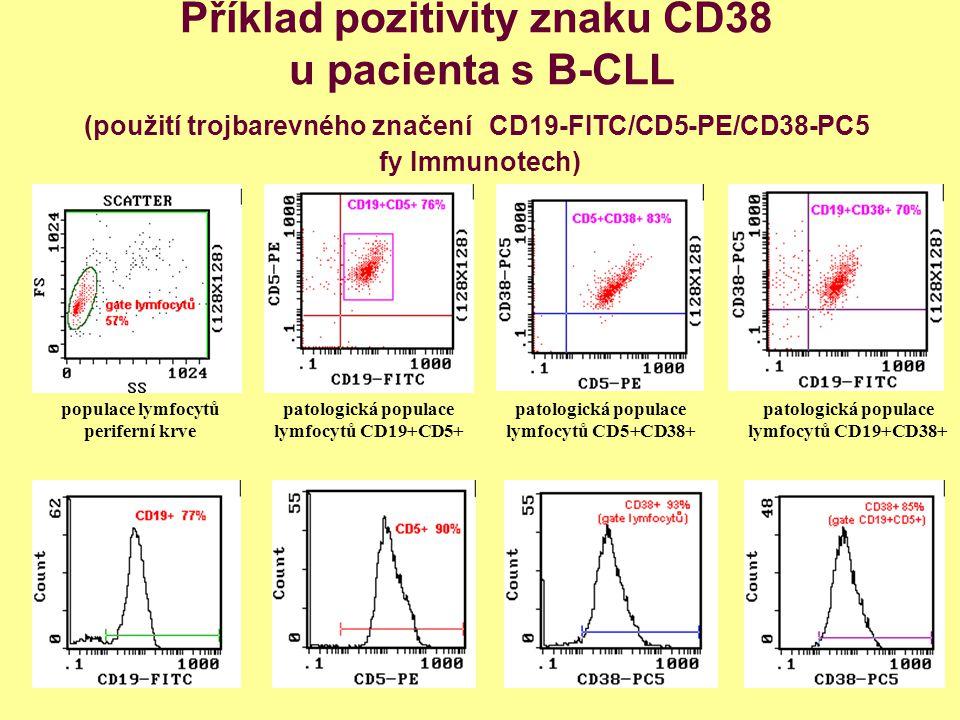 Příklad pozitivity znaku CD38 u pacienta s B-CLL (použití trojbarevného značení CD19-FITC/CD5-PE/CD38-PC5 fy Immunotech)