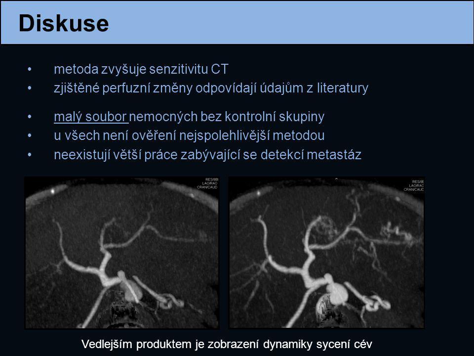 Diskuse metoda zvyšuje senzitivitu CT