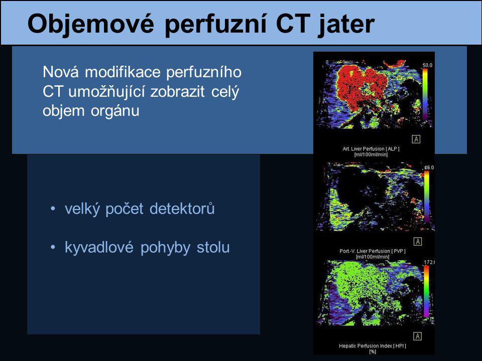 Objemové perfuzní CT jater