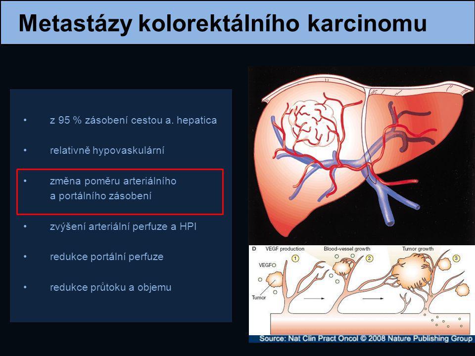 Metastázy kolorektálního karcinomu