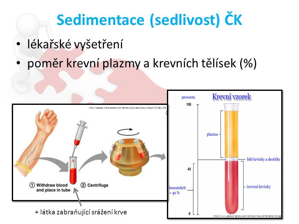 Sedimentace (sedlivost) ČK