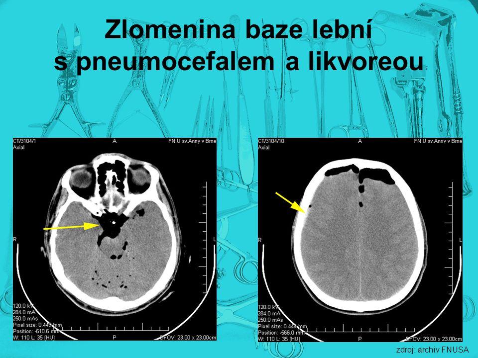 Zlomenina baze lební s pneumocefalem a likvoreou