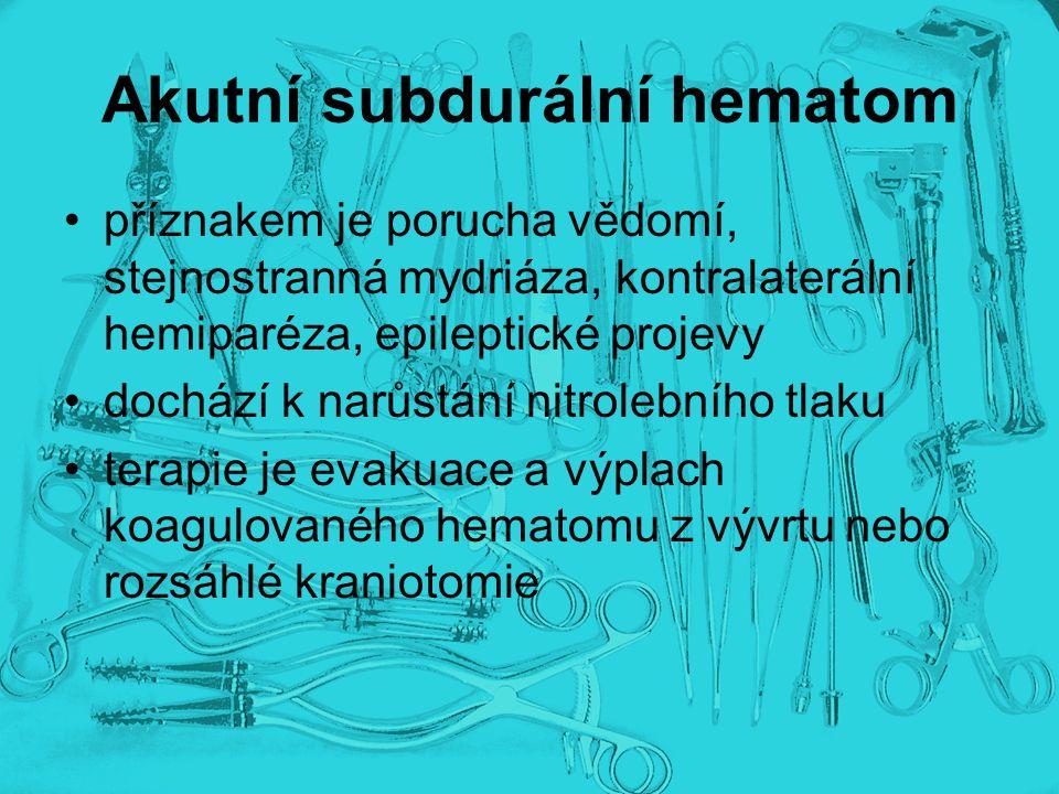 Akutní subdurální hematom