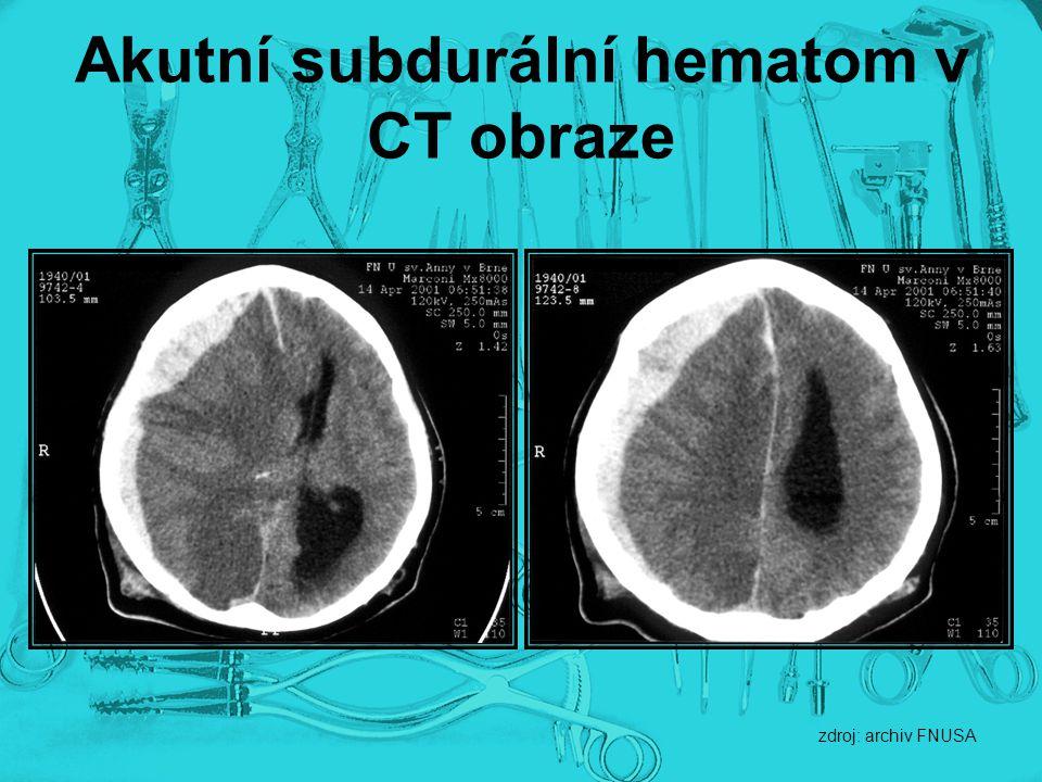Akutní subdurální hematom v CT obraze