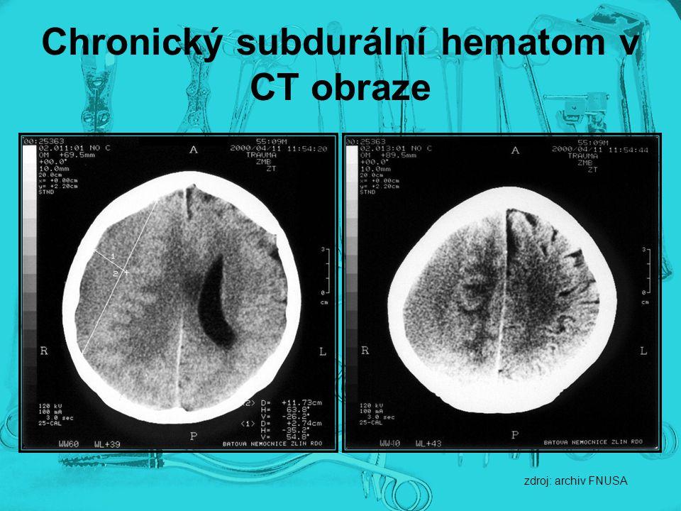 Chronický subdurální hematom v CT obraze