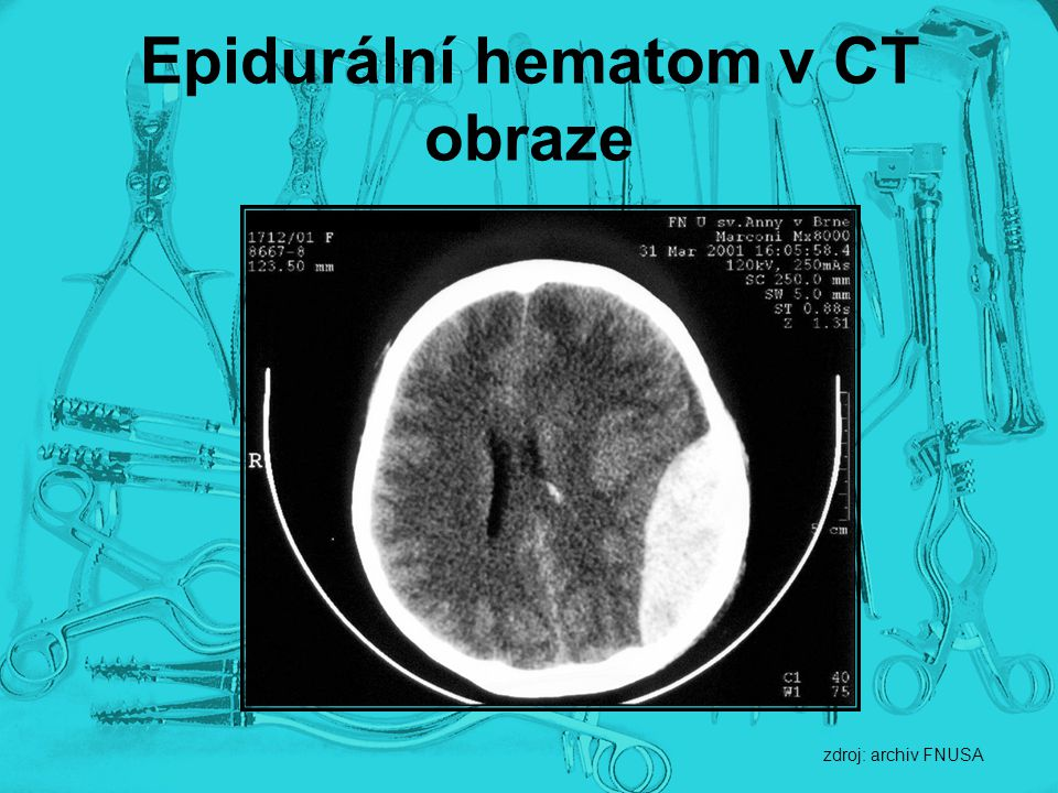 Epidurální hematom v CT obraze