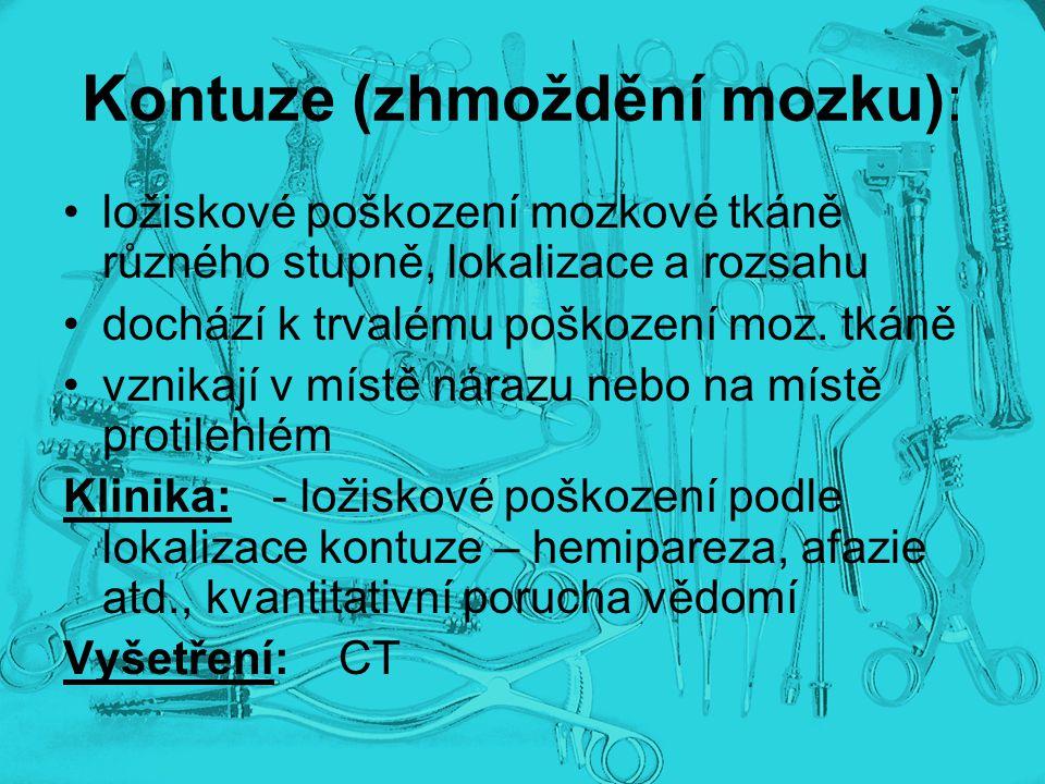 Kontuze (zhmoždění mozku):