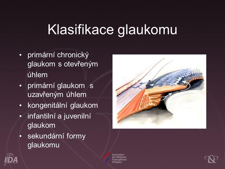 Klasifikace glaukomu primární chronický glaukom s otevřeným úhlem