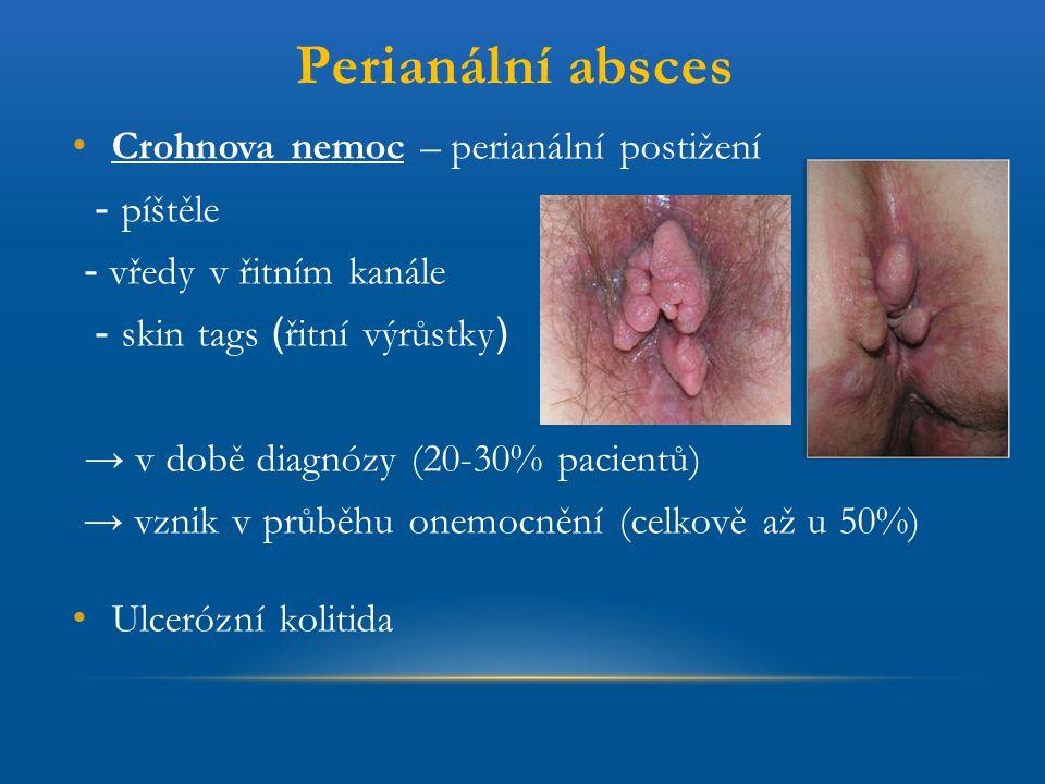 Perianální absces Crohnova nemoc – perianální postižení - píštěle