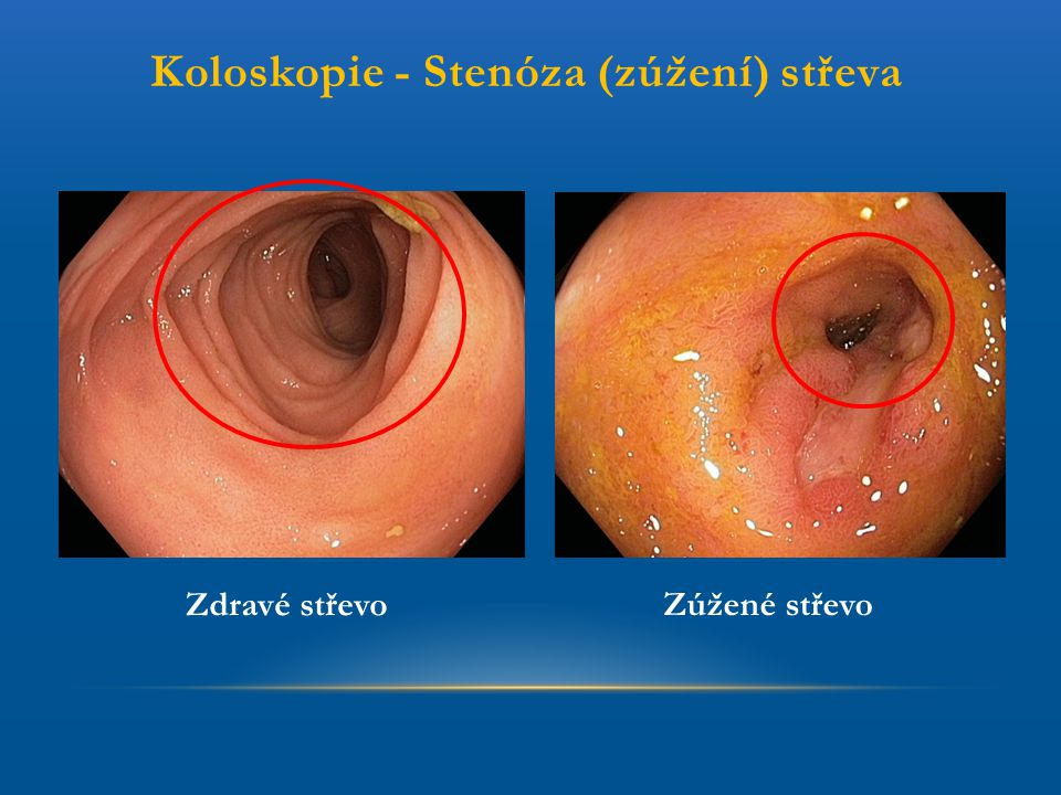 Koloskopie - Stenóza (zúžení) střeva