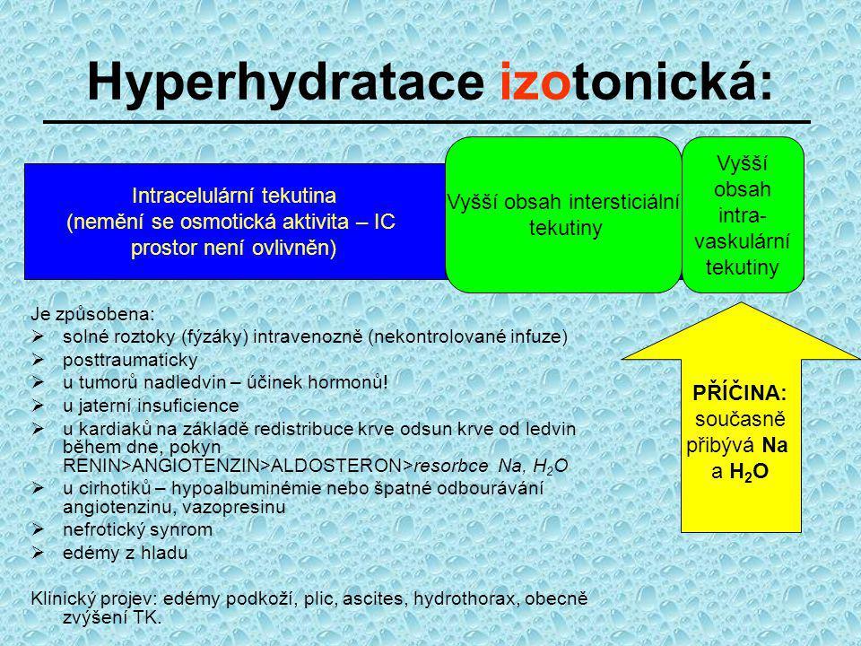 Hyperhydratace izotonická: